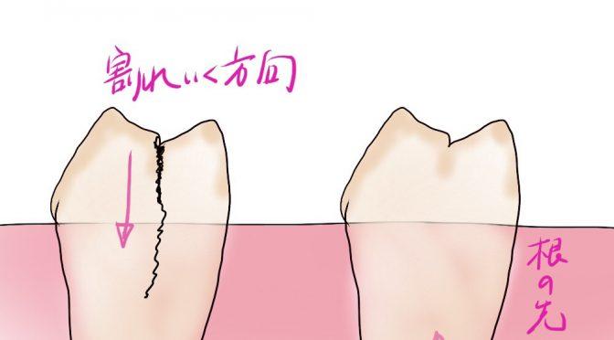 歯の根が割れると言うこと
