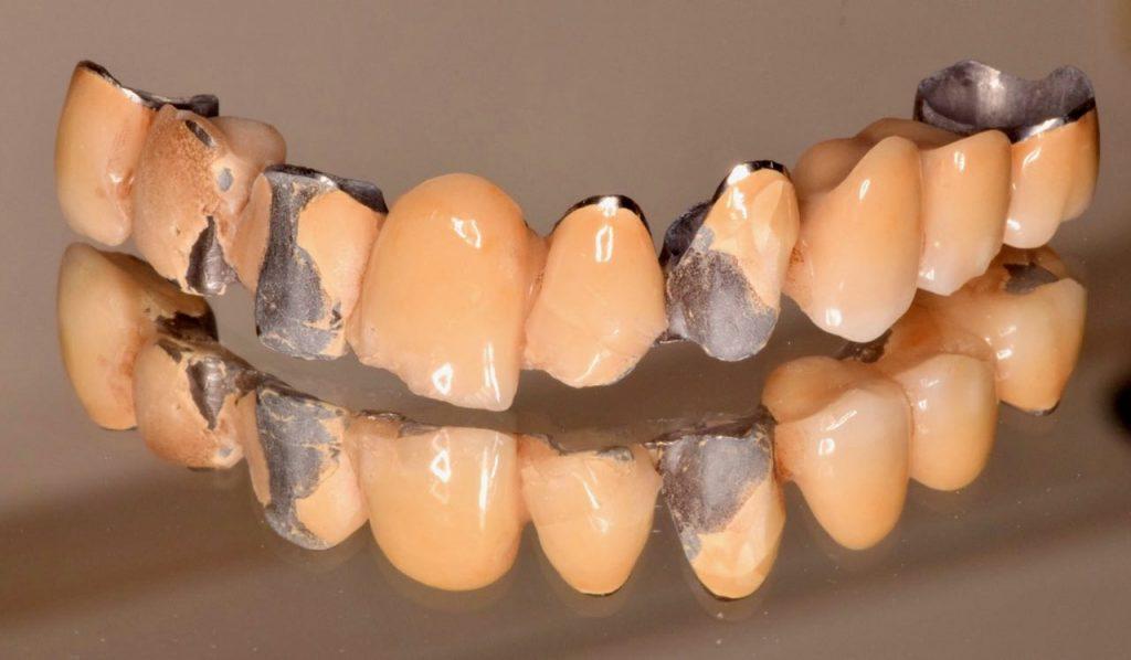 歯軋シラーの末裔