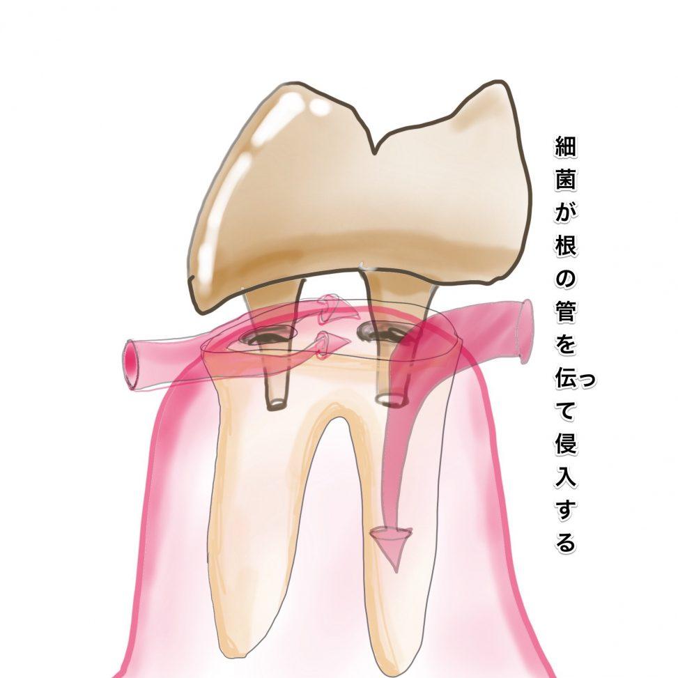 仮歯から細菌が入り込む図